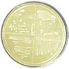 Luria-Bertani (LB) Agar Plates, w/ AMP-100 & X-gal