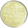 Luria-Bertani (LB) Agar Plates, w/ Carbenicillin-100 & X-gal