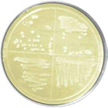 Luria-Bertani (LB) Agar Plates, w/ Erythromycin-5